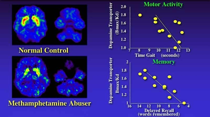Meth Abuse Brain Scans