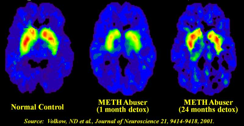meth recovery brain scans